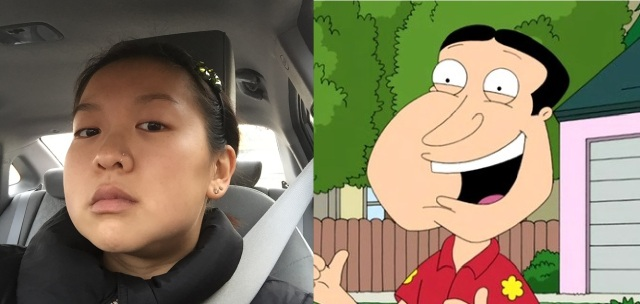 The lower part of my face has been swollen for days. I look like Quagmire from Family Guy!